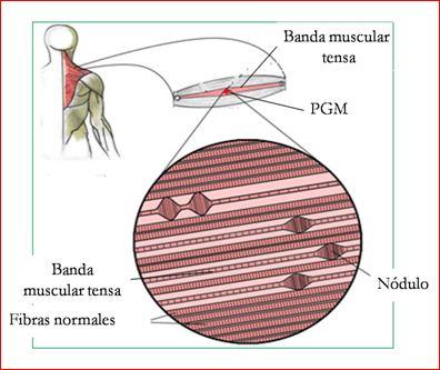 blog de acupuntura